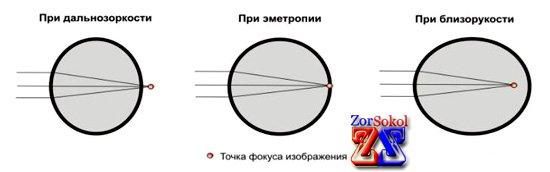 Три вида оптической системы