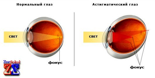 Как долго восстанавливается зрение после операции глаукома