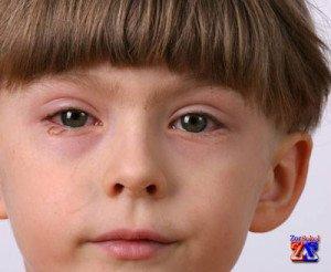 Коньюктивит появляется при склонности к аллергии