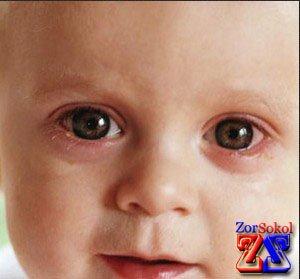 Лечение каплями для глаз