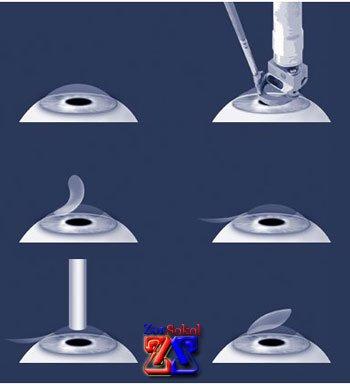 Этапы хирургической операции