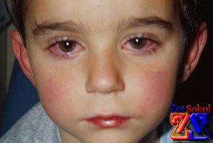 глазные капли от паразитов в глазах