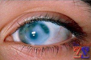 Глаз, пораженный ВГД