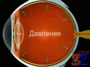 Как лечится глаукома глаза