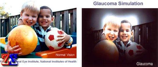 Взгляд здоровым глазом и больным глаукомой