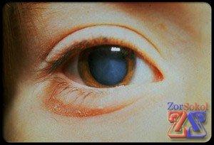 Так выглядит пораженный глаз