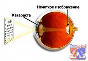Различные виды катаракты