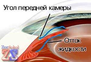Когда нарушен отток глазной жидкости