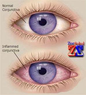 Нормальный и воспаленный глаз