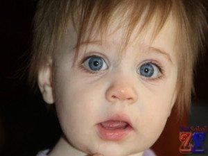 Анизокория у ребенка
