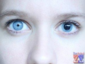 Анизокория у взрослого