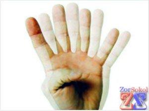 Симптомы диплопии