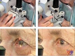 Диагностика старческой катаракты