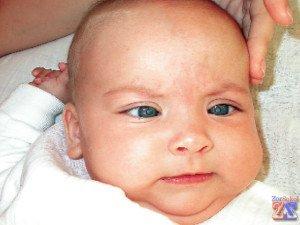 Малыш с двусторонней катарактой