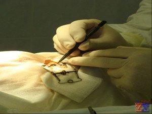 Первая имплантация