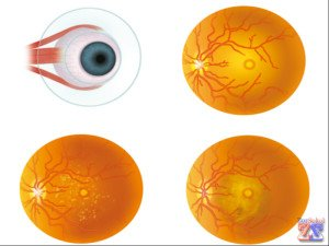 Нормальное и анормальное состояние глазного дна