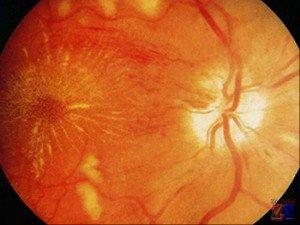 Вид глазного дна при гипертензии
