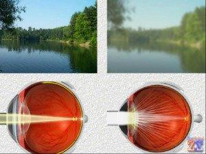Так видит глаз при катаракте