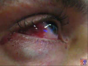 Катаракта может возникнуть из-за травмы глаз