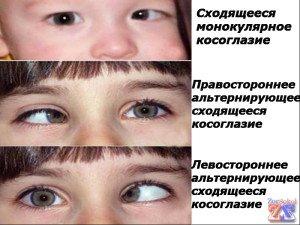 Некоторые виды косоглазия