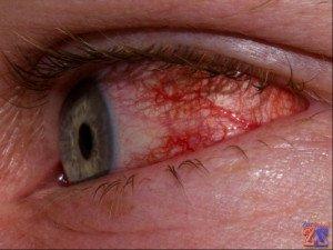 Первый признак воспаления - покраснение глаз
