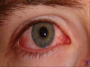 Так выглядят глаза с ССГ