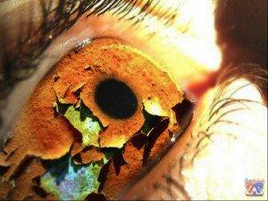 Основной симптом - сухость глаз