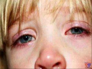 Первые симптомы: зуд, покраснение и утолщение век
