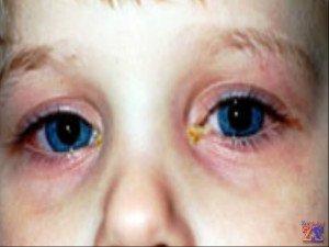Основные признаки болезни - покрасневшие и отекшие веки