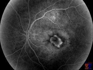 Снимок центральной хориоретинальной дистрофии
