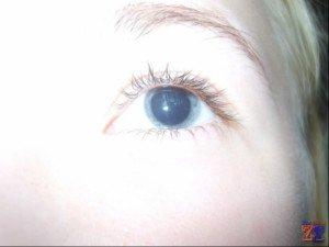 Расширения зрачка для осмотра глазного дна