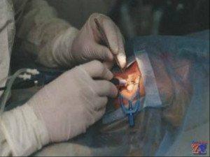 Лазерное лечение халязионов