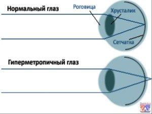 При дальнозоркости изображение проецируется за сетчаткой