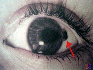 Травмы глаз очень опасны
