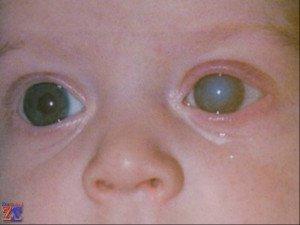Глаукома может быть и у детей