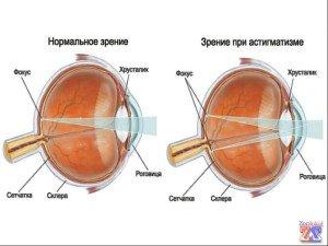 Разница между глазами: здоровым и астигматичным