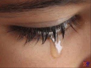 При закапывании раствор Альбуцида вызывает жжение и слезотечение