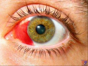 Показания: кровоизлияния в глазу