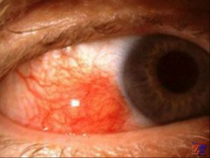 Глаз, пораженный эписклеритом