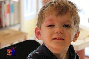 Случаи опухания глаз: укус насекомого