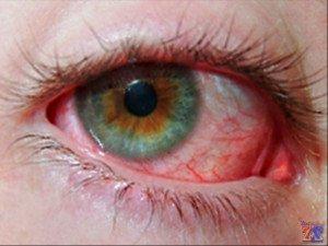 Показания для применения Офтаквикса - бактериальные воспаления глаз