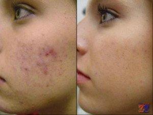 До и после применения мыла и крема