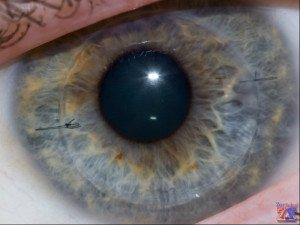 Показания: дистрофия и травмы роговицы, катаракта