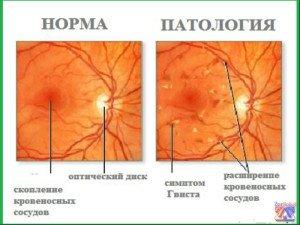 Видимые изменения при исследовании глазного дна