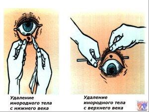 Правила удаления инородного тела из глаз