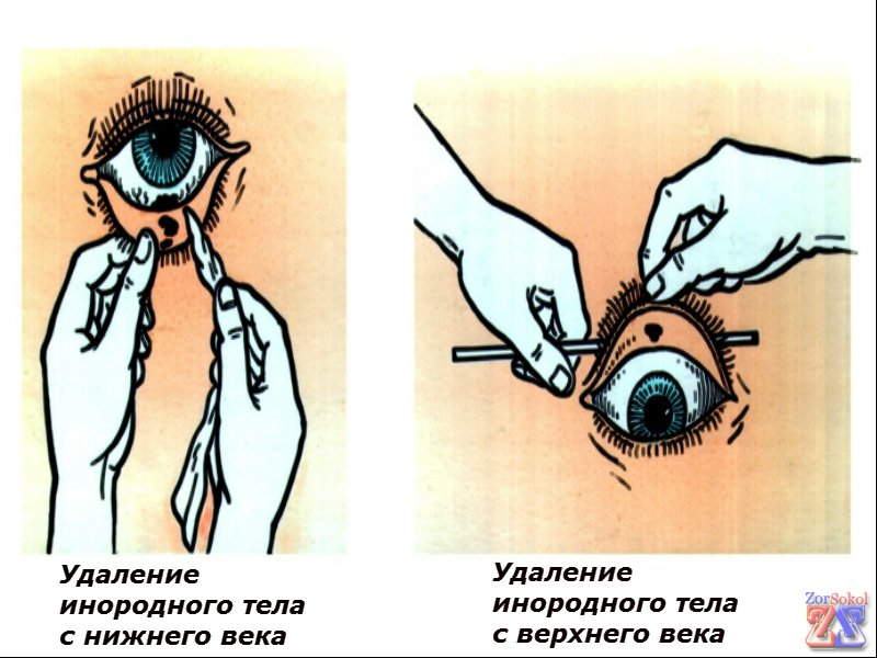 Попало в глаз чем лечить в домашних  4