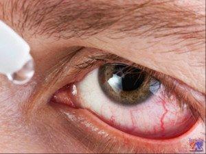 Действие Офтальмоферона распространяется на разные болезни глаз