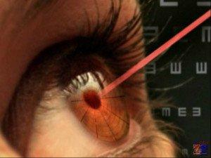 Для улучшения зрения можно сделать лазерную коррекцию