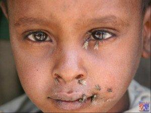 Переносчиками трахомы могут являться мухи