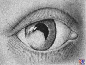 Лейкома - рубец после травмы глаза
